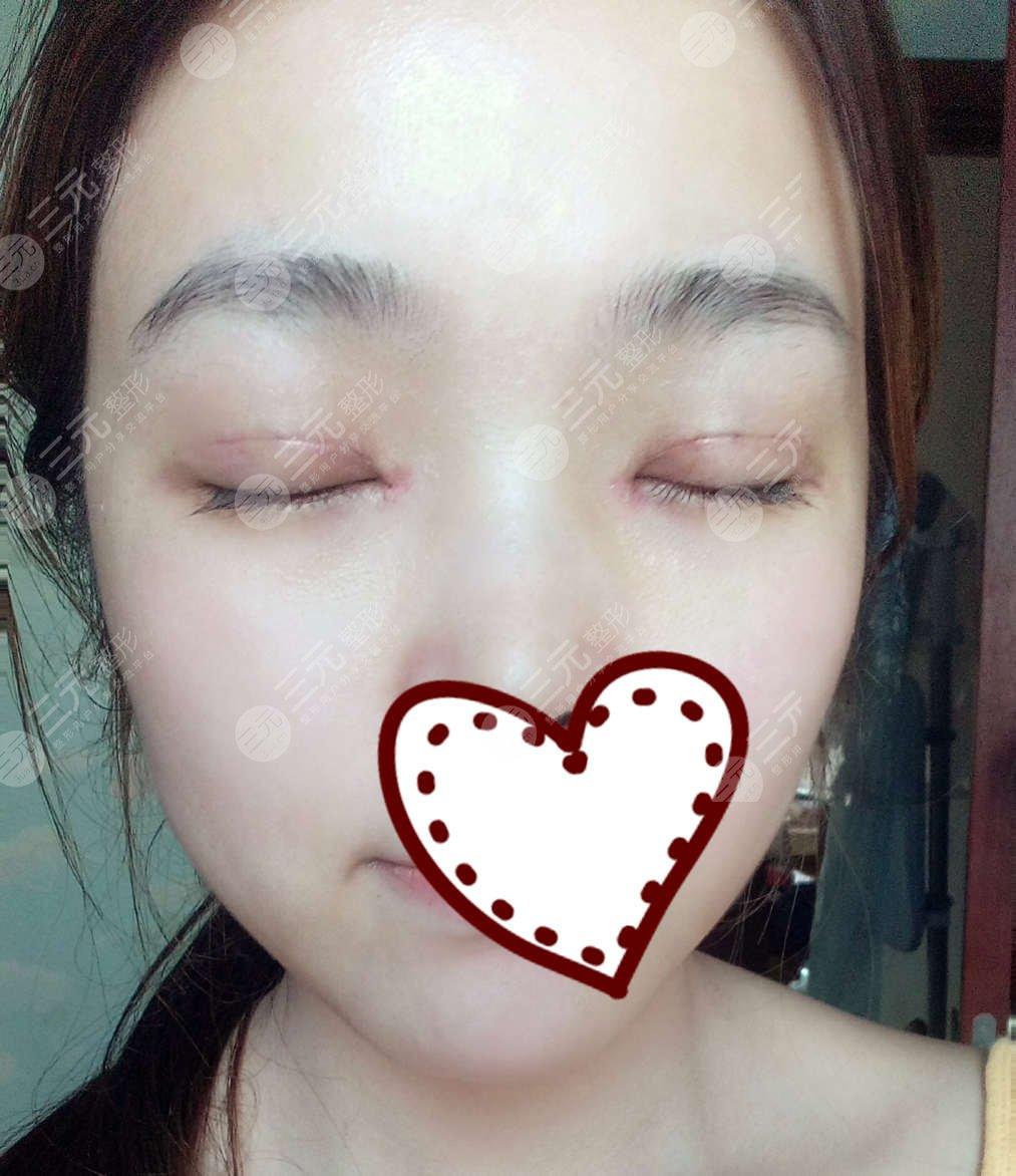 华西肖海涛双眼皮修复案例