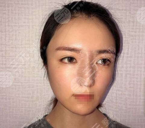 贵州省二医院刘辉的手术案例