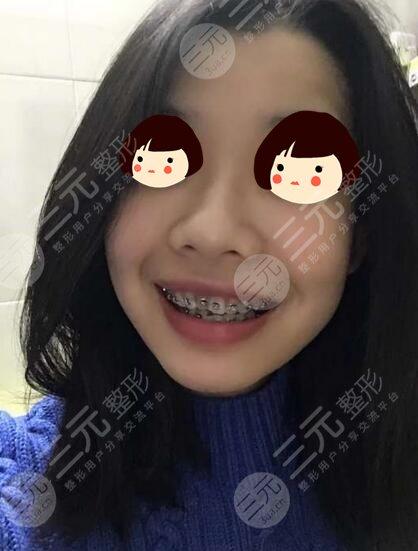 宁波口腔医院牙齿矫正案例