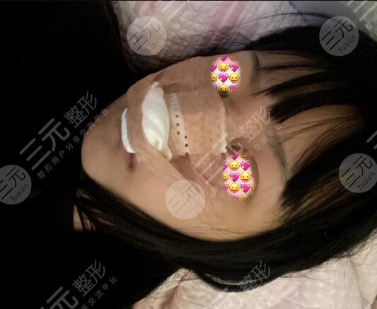 路会医生鼻子案例
