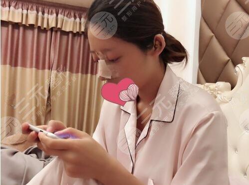 上海九院驼峰鼻矫正案例