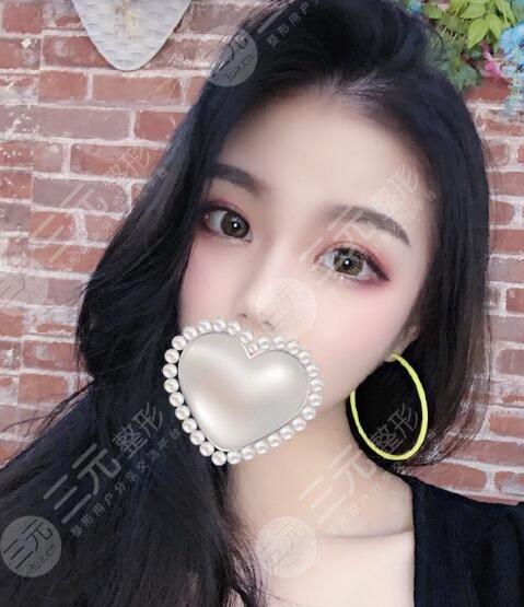 北京伊美康刘莹双眼皮案例