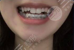 韩美口腔医院牙齿矫正经历分享