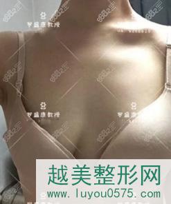 我找罗盛康做的乳房悬吊术+假体隆胸前