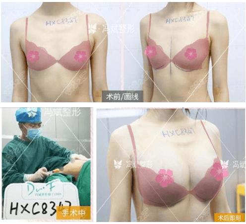 北京东方和谐冯斌自体脂肪丰胸效果怎么样?自体脂肪丰胸案例赏析