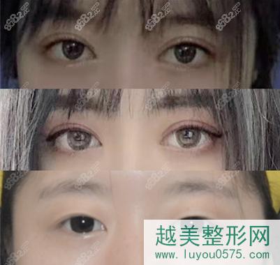西安西京医院孙峰眼综合案例