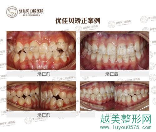 优佳贝口腔医院牙齿矫正案例