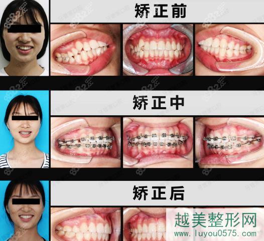 北京牙管家口腔医院牙齿矫正案例