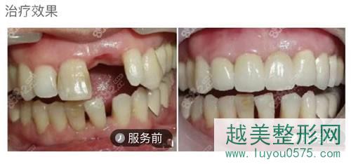 北京钛植口腔门诊种植牙案例