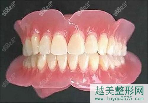 吸附性义齿的优势