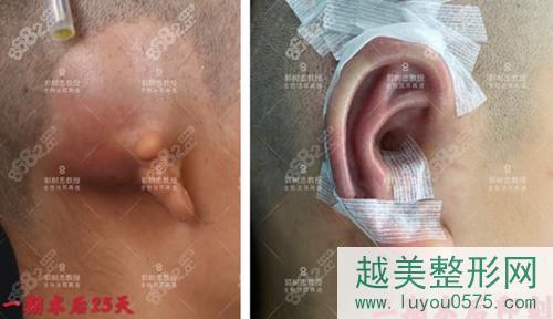 西安国医整形郭树忠耳再造前后对比图