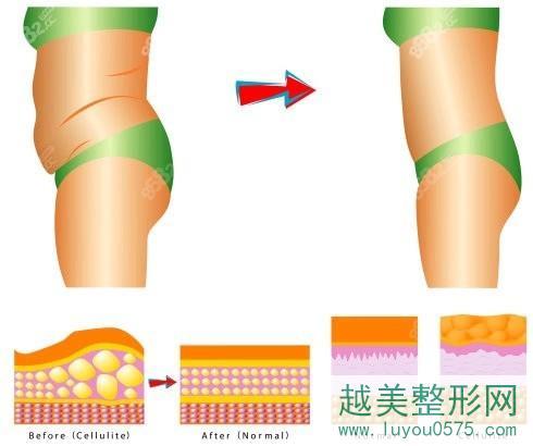 腰腹吸脂效果对比
