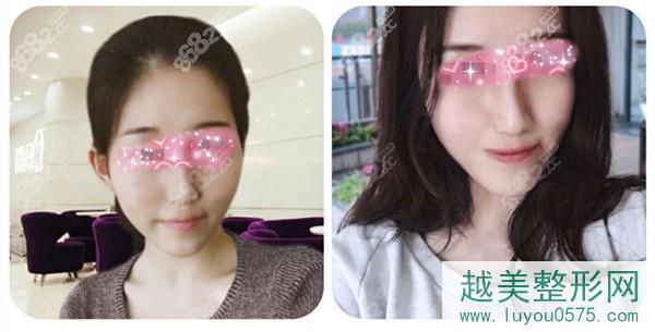 广州家庭医生面部脂肪填充案例