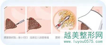 腰腹吸脂过程原理
